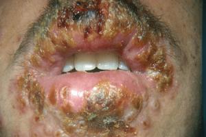 Ağız İçi HPV Siğiller - 14